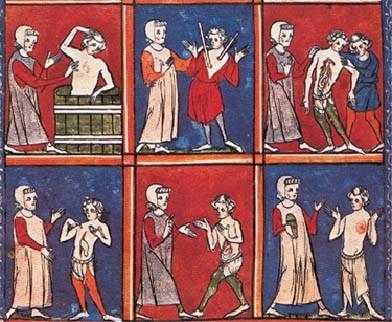 cirugia medieval